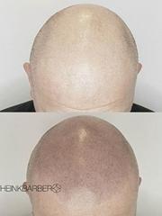男性头发稀疏smp头皮纹身黑色点刺技巧纹身图案