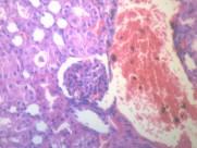 腎凝固性壞死 顯微切片圖片_17張